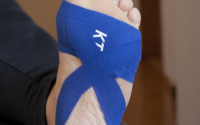 Preventing and Treating Plantar Fasciitis